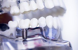 Model smile with implant fixed bridge