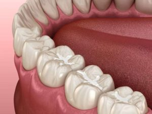 molars with tooth-colored fillings 3D illustration